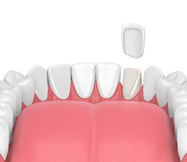 Composite Bonding Fonthill Dentist